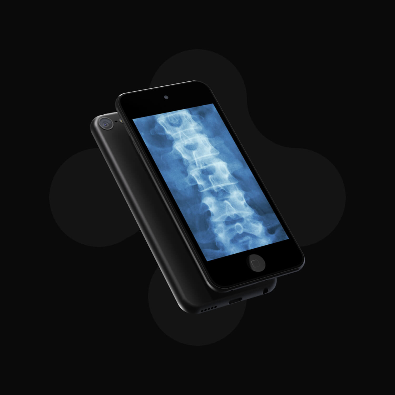 4th generation ipod touch displaying an x-ray image of a spine
